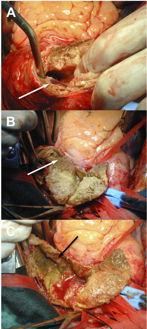 Giant aortic arch aneurysm and cardio vocal syndrome for Aortic mural thrombus