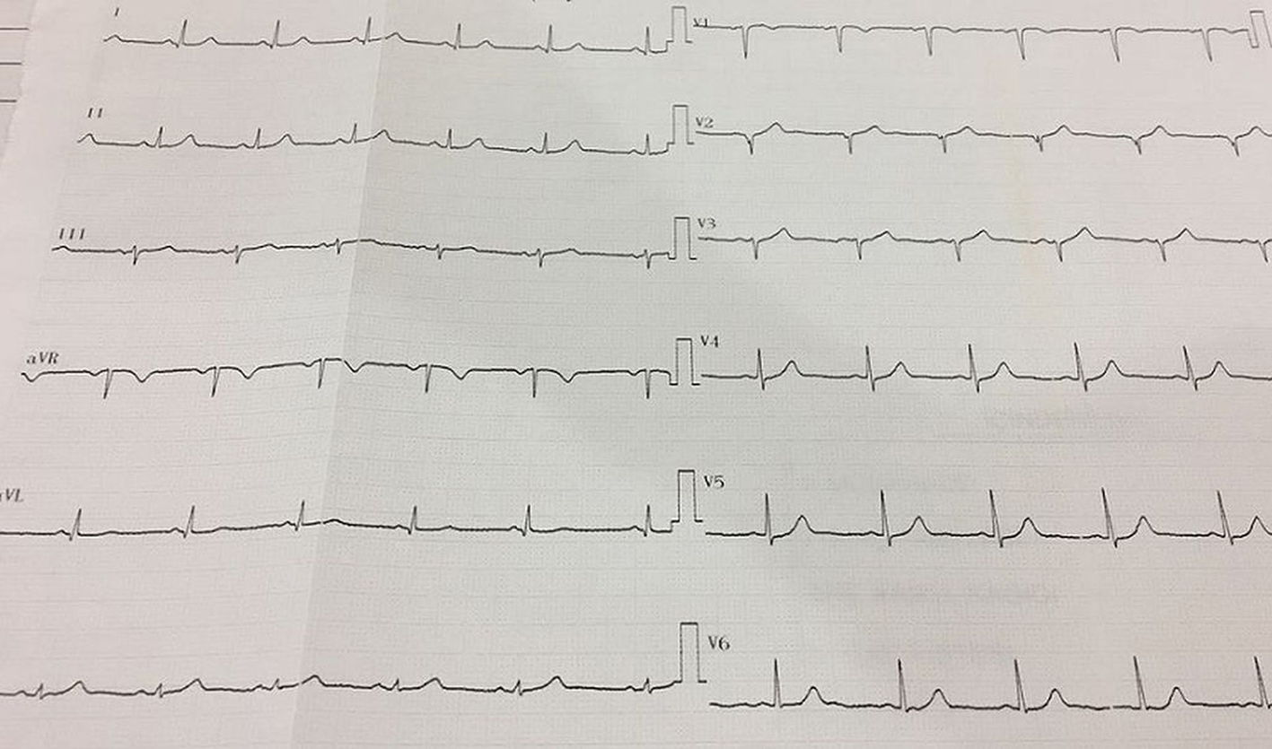 A Novel Electrocardiographic Sign of an ST-Segment Elevation
